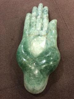 מנתח כף יד פרטי